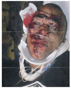 Alex Landau was beaten by Denver cops in 2009.